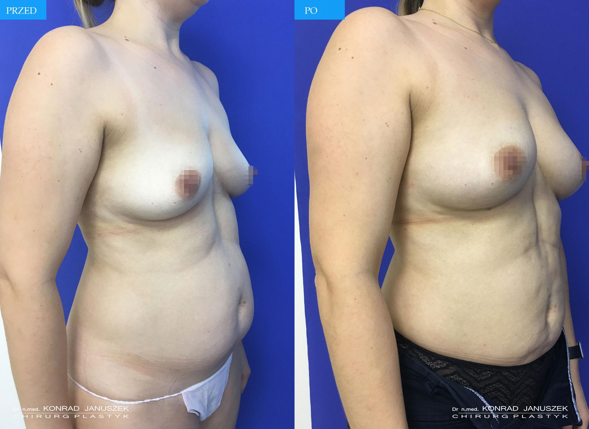 Liposukcja Laserowa