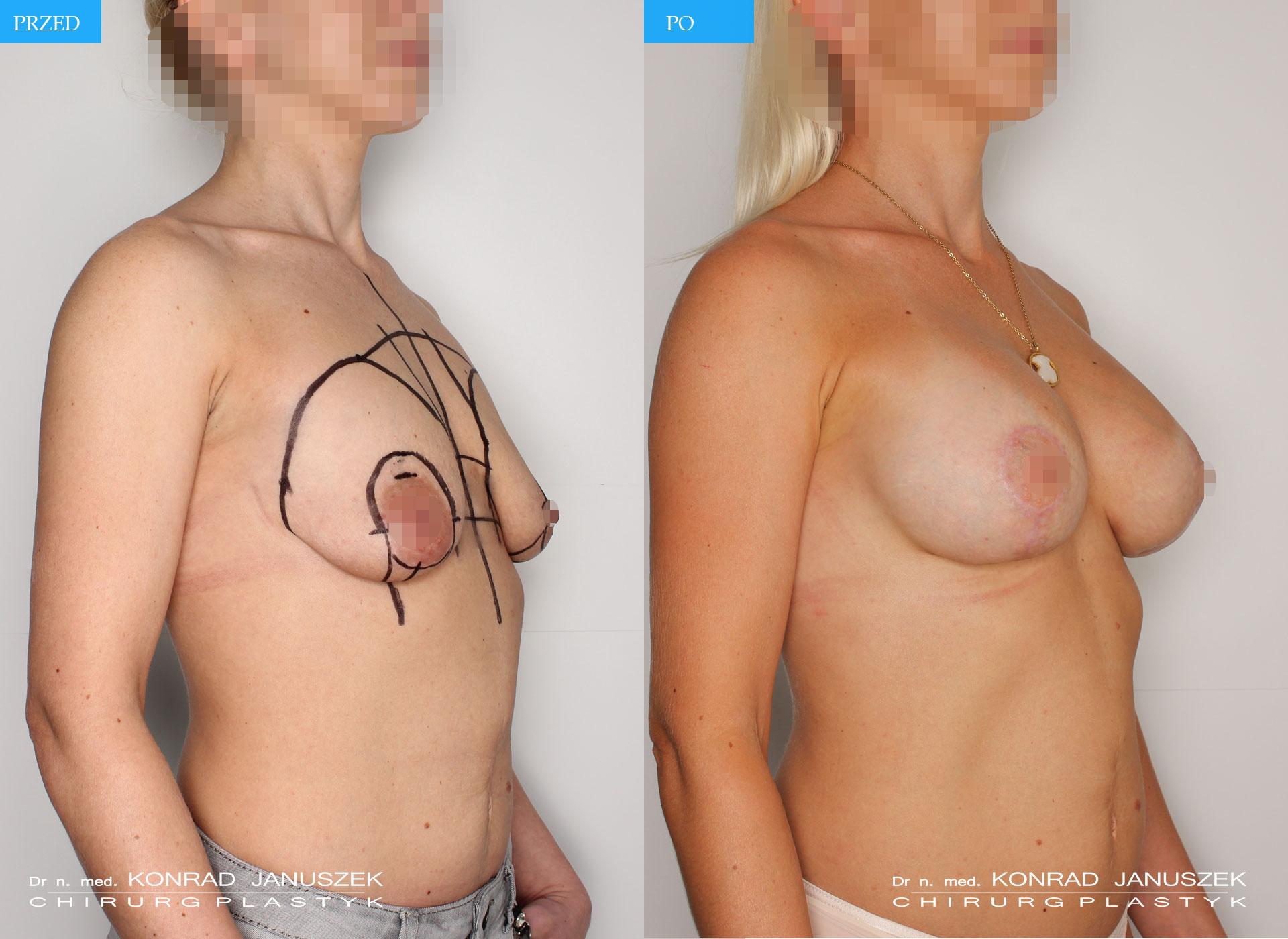 implanty+podniesienie1_4razem