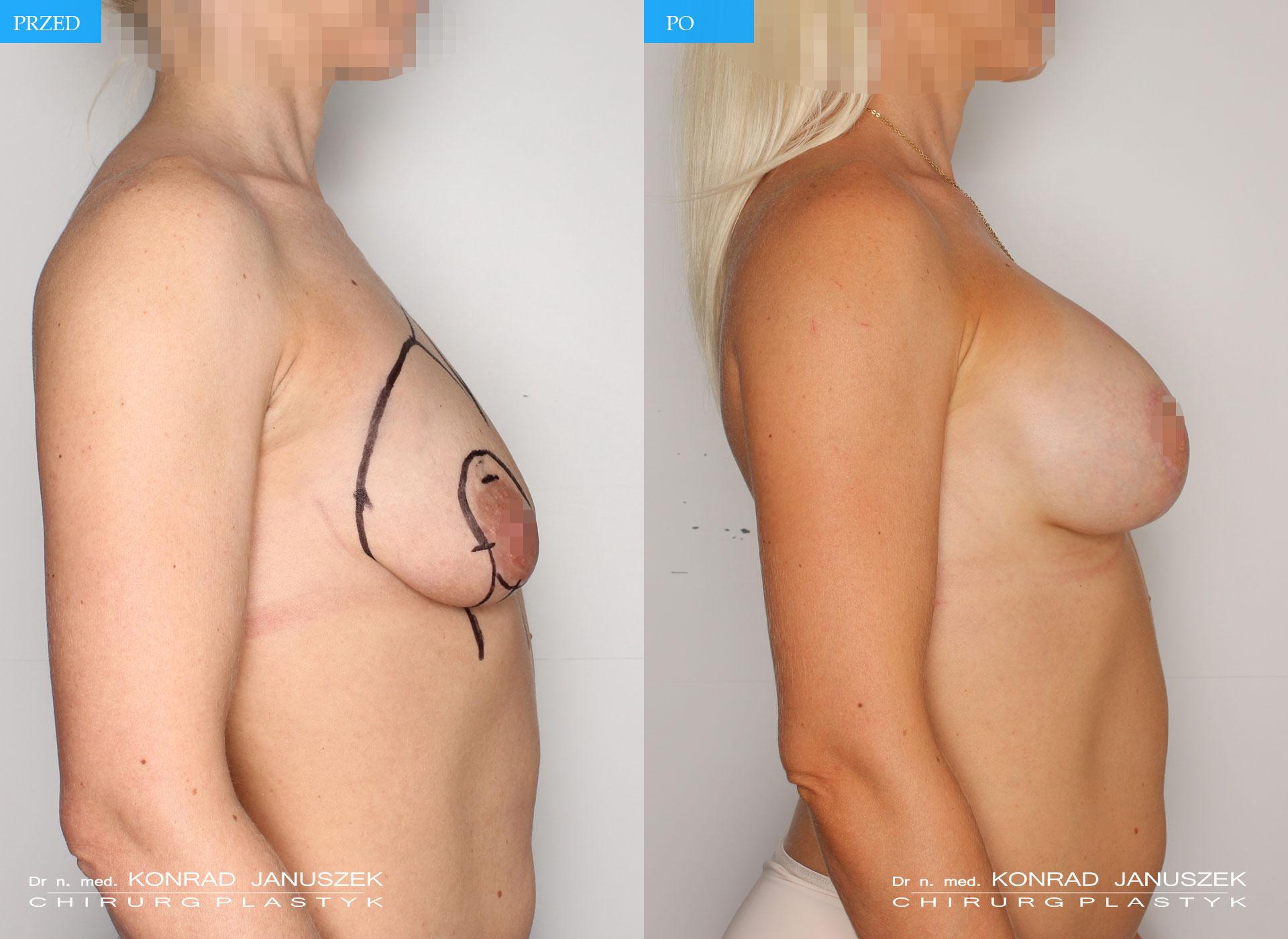 implanty+podniesienie1_5razem