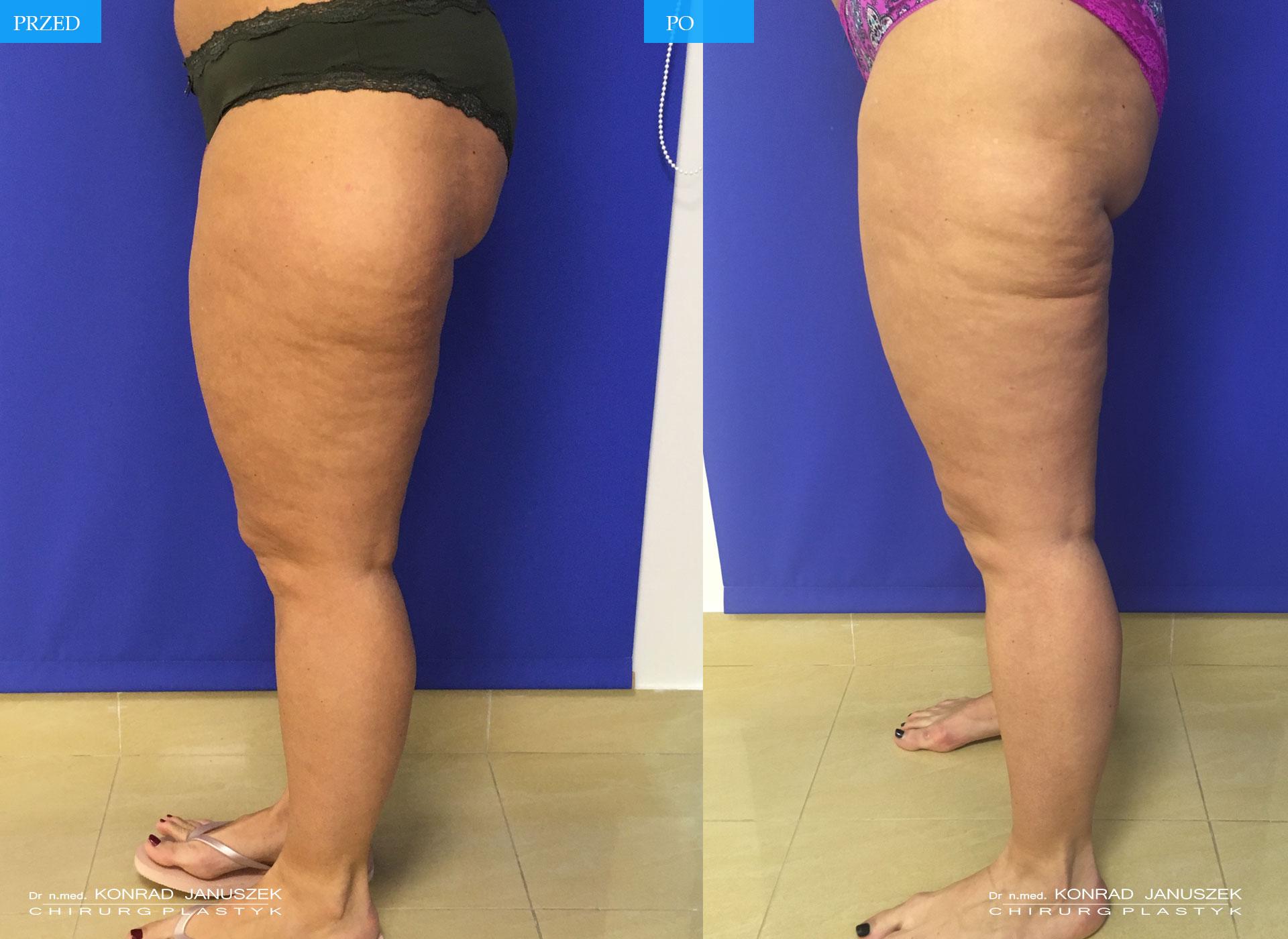 Liposukcja Laserowa - Uda
